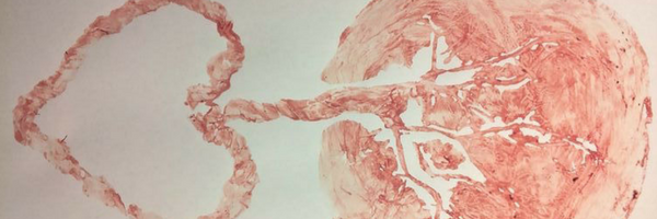 blood print of placenta
